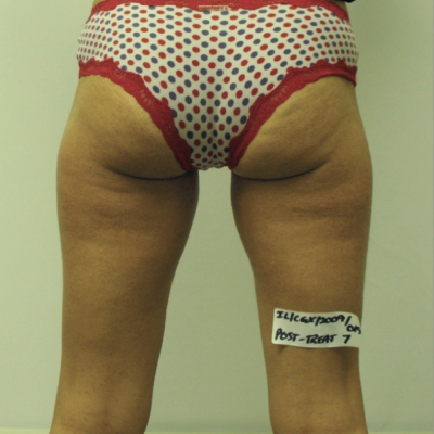 "After, i-Lipo treatment for ""saddlebags"""