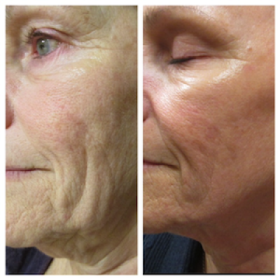 Apollo treatment for face wrinkles