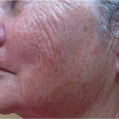 After 6 treatments, Apollo Tripollar