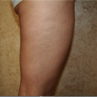 After, Apollo treatment for cellulite