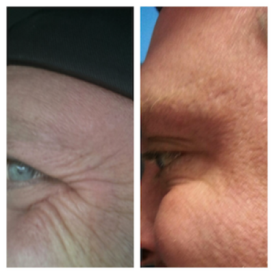 Botox treatment for crows feet