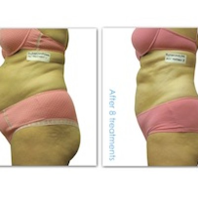 i-Lipo treatment