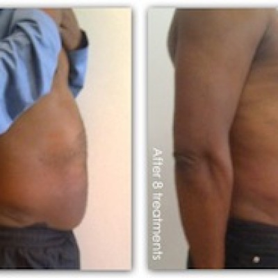 i-Lipo treatment, male abdomen