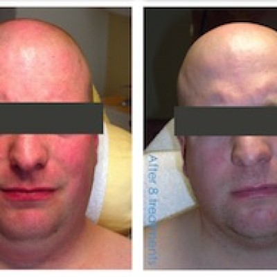 i-Lipo treatment, male chin
