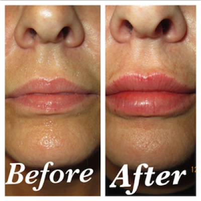 Lip enhancement treatment, Restylane