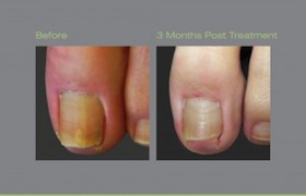 Laser-for-Nail-Fungus