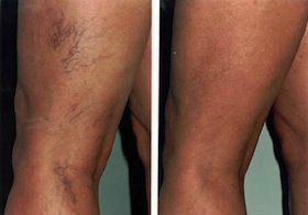 laser-vein-therapy-1